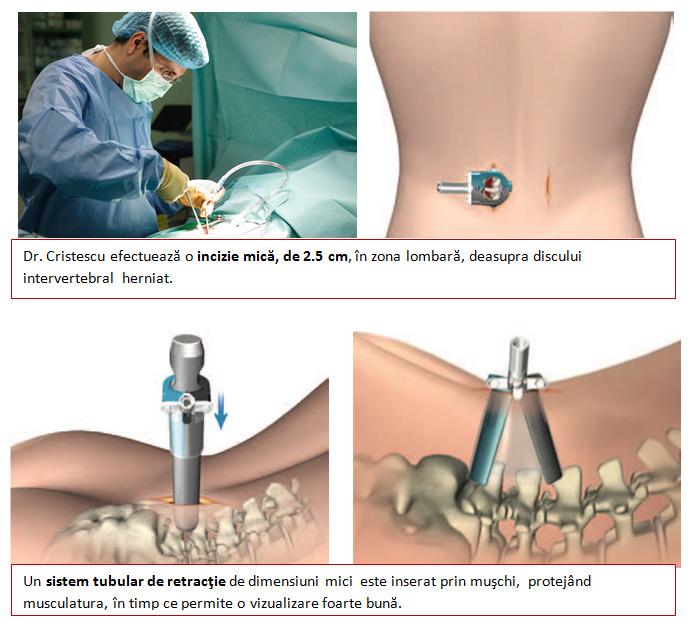 operatie hernie de disc regina maria